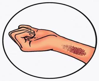 znakove arterijskog i venskog krvarenja