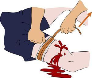 karakteristični znakovi krvarenja u arterijama