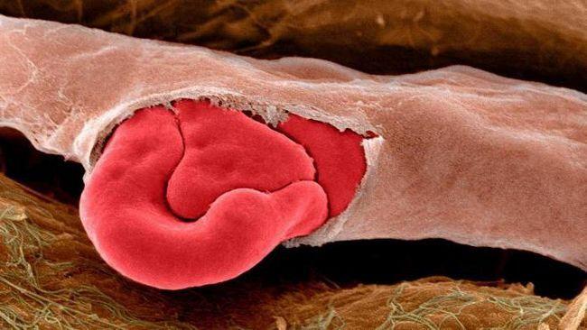 znakovi kapilarnog krvarenja