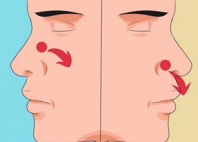 glavni znakovi kapilarnog krvarenja