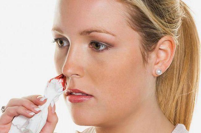 vanjskih znakova kapilarnog krvarenja