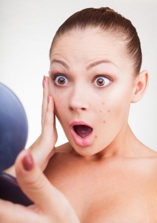 kako se riješiti akni na licu