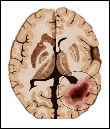 Rak mozga