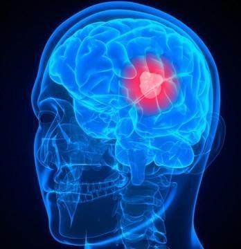 Rak karcinoma (uzroci)