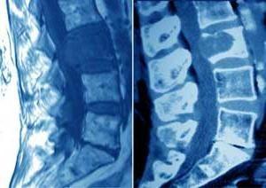 Rak debelog crijeva (simptomi)