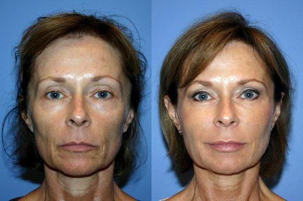 revitalizacija kože lica