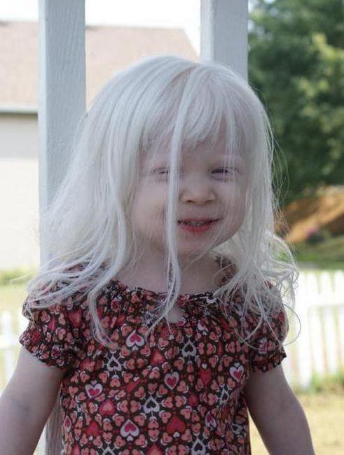 siva kosa djeteta 6 godina
