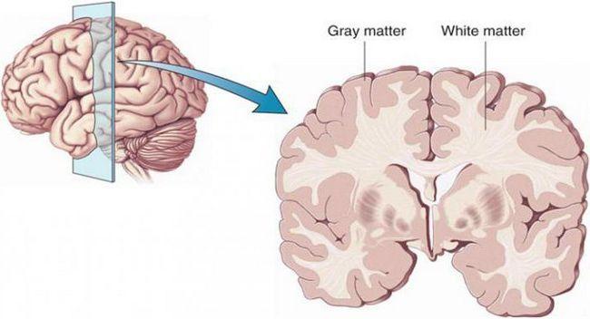 bijele i sive tvari mozga