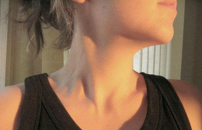 znakovi bolesti štitnjače kod žena