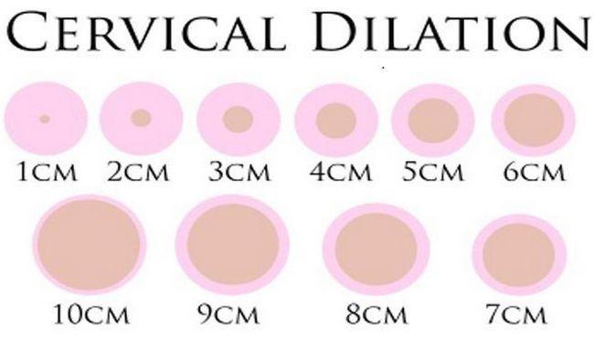 kontrakcije prije rođenja