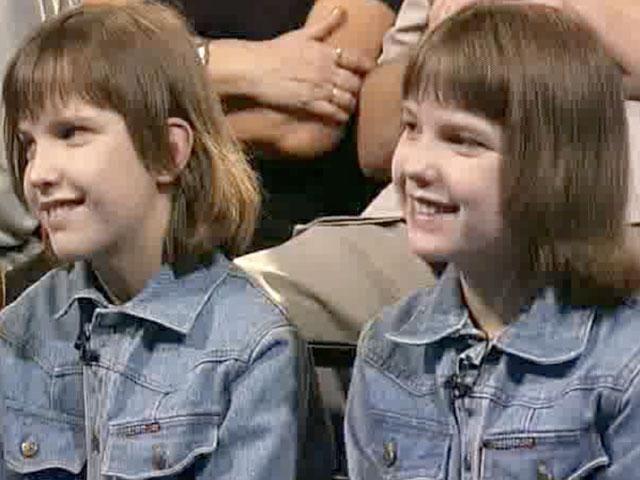 Sijamski blizanci u Rusiji anja i tanya korkins