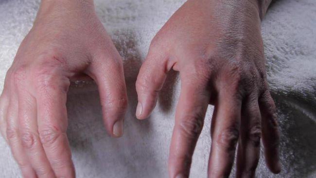 alergije na simptomima beba fotografija