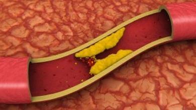 Aortna skleroza i njezine posljedice