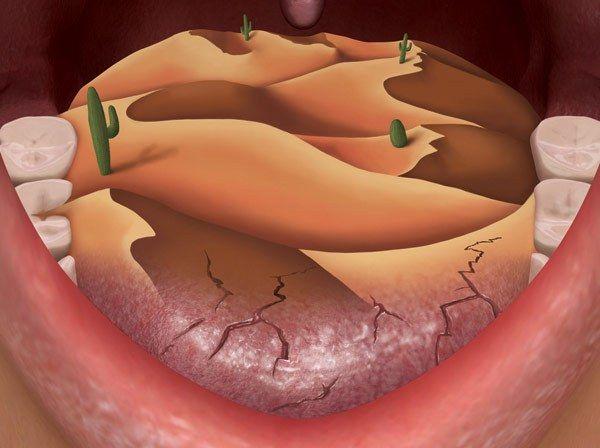 suhoća usta uzroka bolesti