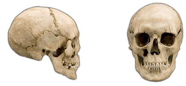 topografija lubanje lica