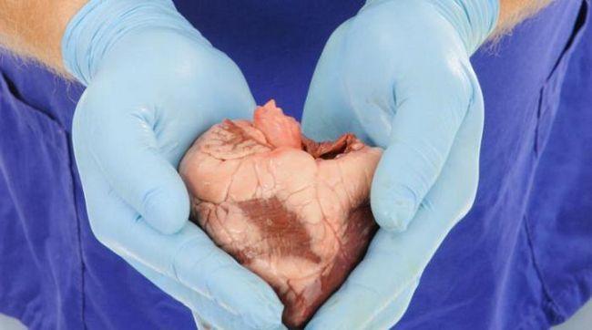transplantacija organa
