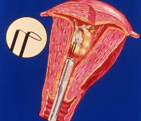 polip u pregledima uklanjanja maternice