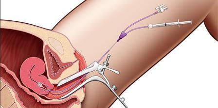 uklanjanje polipa maternice pomoću laserskih pregleda