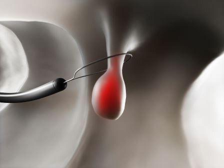 uklanjanje polipa u maternici laserom