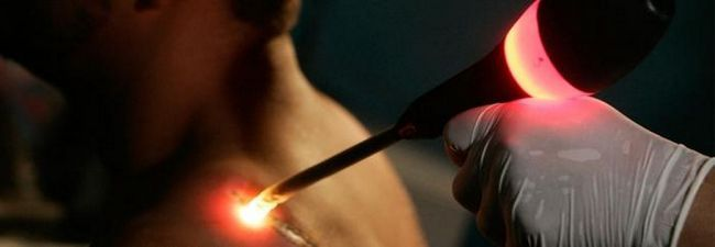 laseri za uklanjanje tetovaža