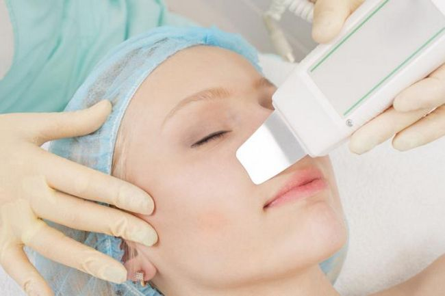pregled acne tretman