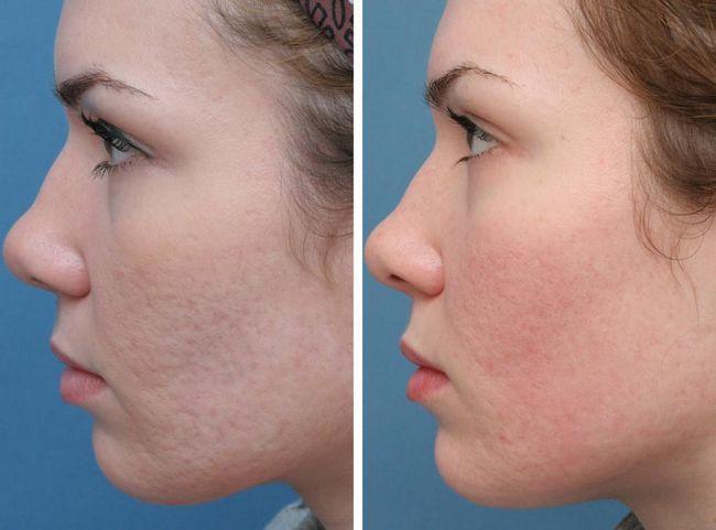 ultrazvučni stroj za lice peeling