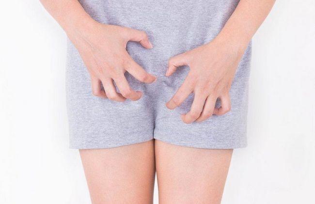 vaginalni simptomi kandidijeza