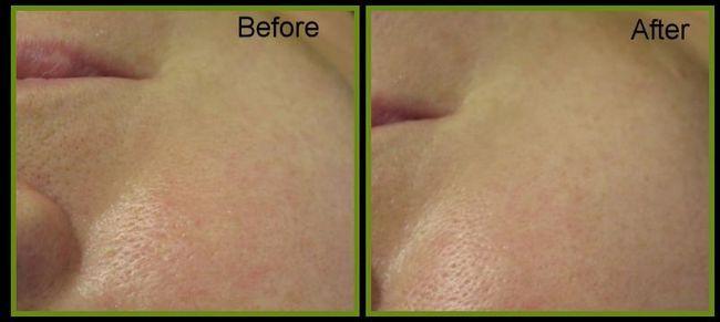 Fotografija za čišćenje vakuumskog lica