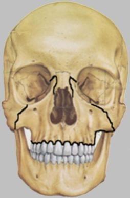 procesa gornje čeljusti