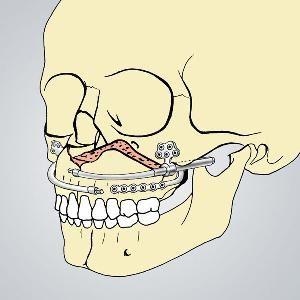 ekstrakcija zuba na gornjoj čeljusti