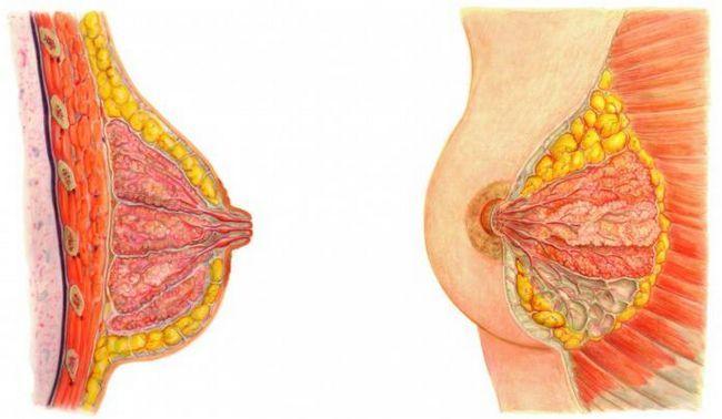 Bolesti dojke kod žena