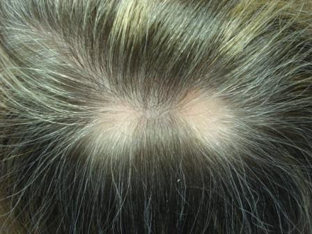 zašto dijete ima gubitak kose