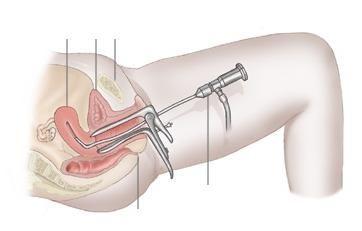 Trudnoća nakon histeroskopije