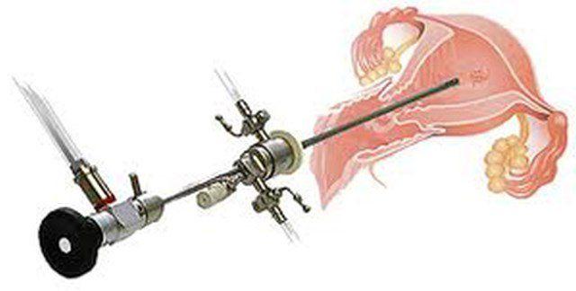 Histeroskopija je