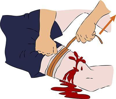 načine privremenog zaustavljanja vanjskog krvarenja