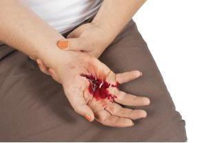 načina za zaustavljanje venskog krvarenja