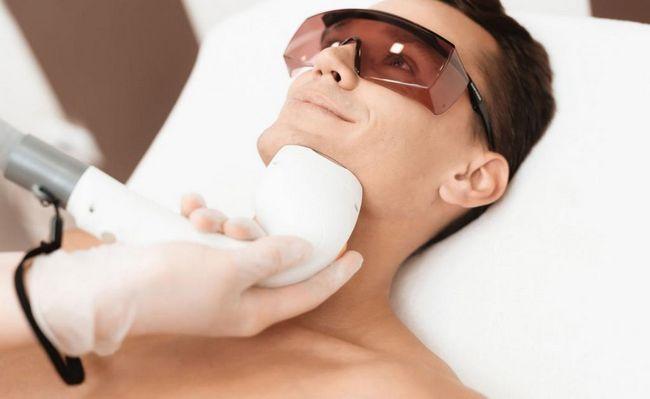 Pozitivni aspekti laserskog uklanjanja dlaka
