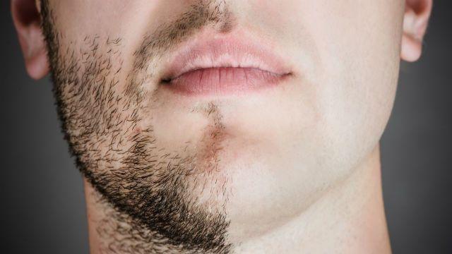 Profesori laserskog uklanjanja dlaka za muškarce