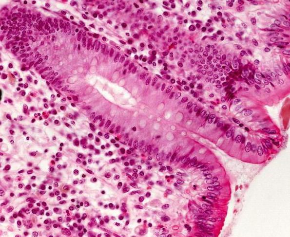 žljezdano mliječno tkivo