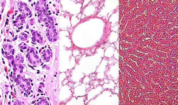 žljezdano epitelno tkivo