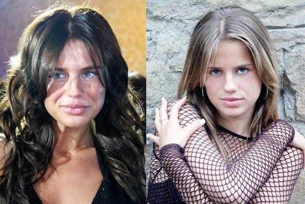 žrtve plastične kirurgije prije i poslije