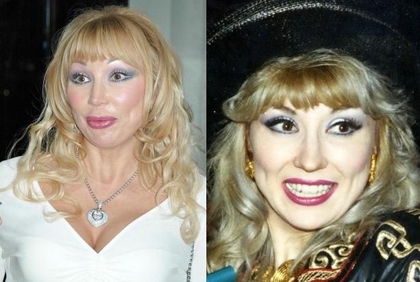 žrtve plastične operacije prije i poslije Ruske