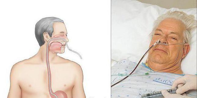 algoritam nasogastrične cijevi