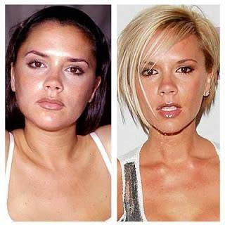 fotografija zvijezda nakon plastične kirurgije
